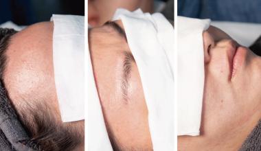 臉部蜜蠟除毛 (櫻花蠟) |熱蠟除毛|基礎操作|其他部位|髮際線|眉毛|唇周|硬蠟|教學影片